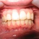 5.3 Final de tratament 25 luni